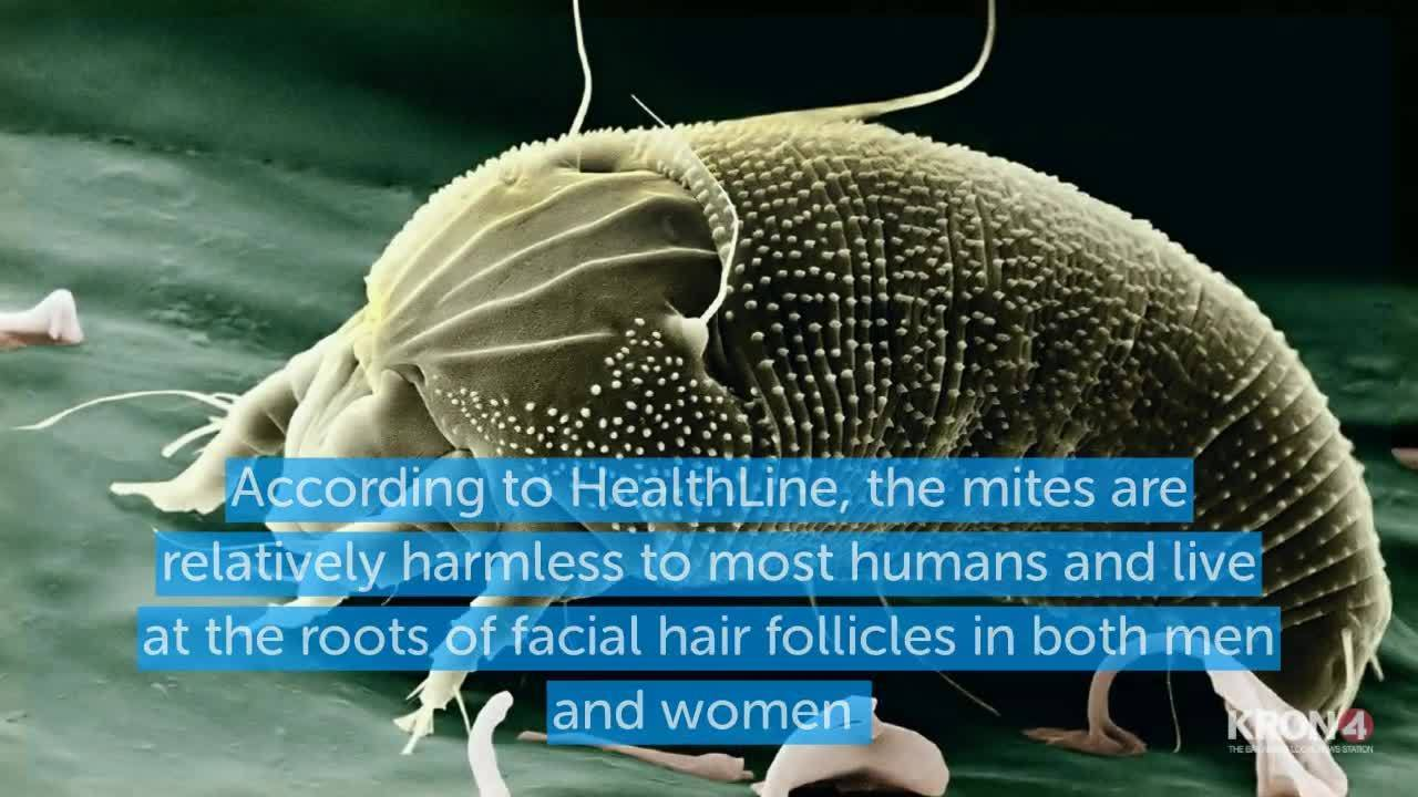Your face is teeming with mites: Tiny eight-legged creatures